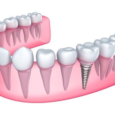 Preparation for Dental implants