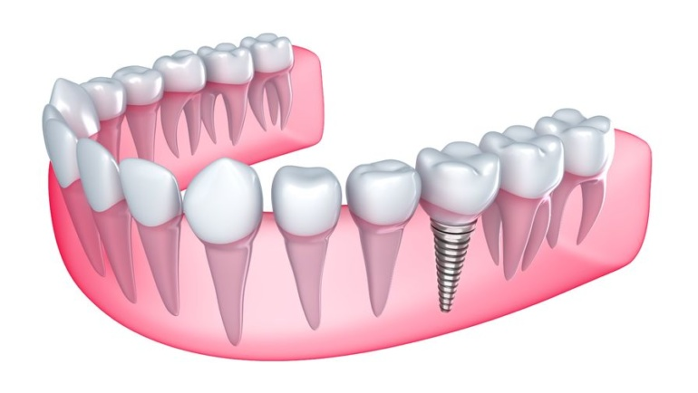 The various benefits of all on 4 dental implants