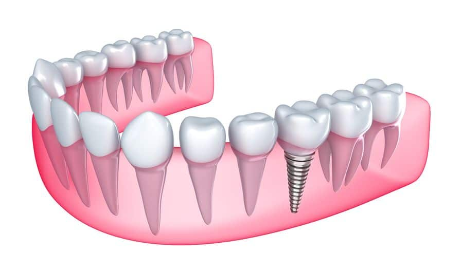 Preparation for Dental implants