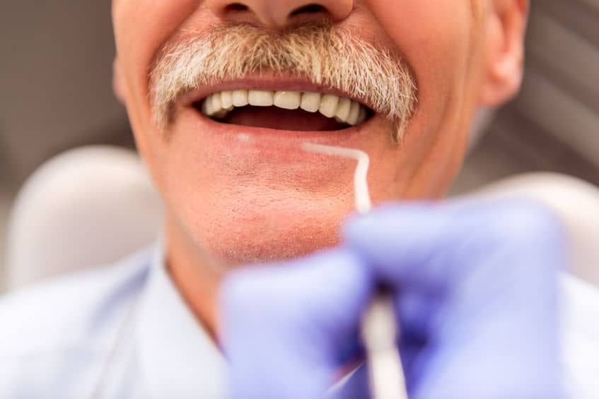 What you need to know about getting dentures