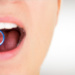 Common reasons for gum recession